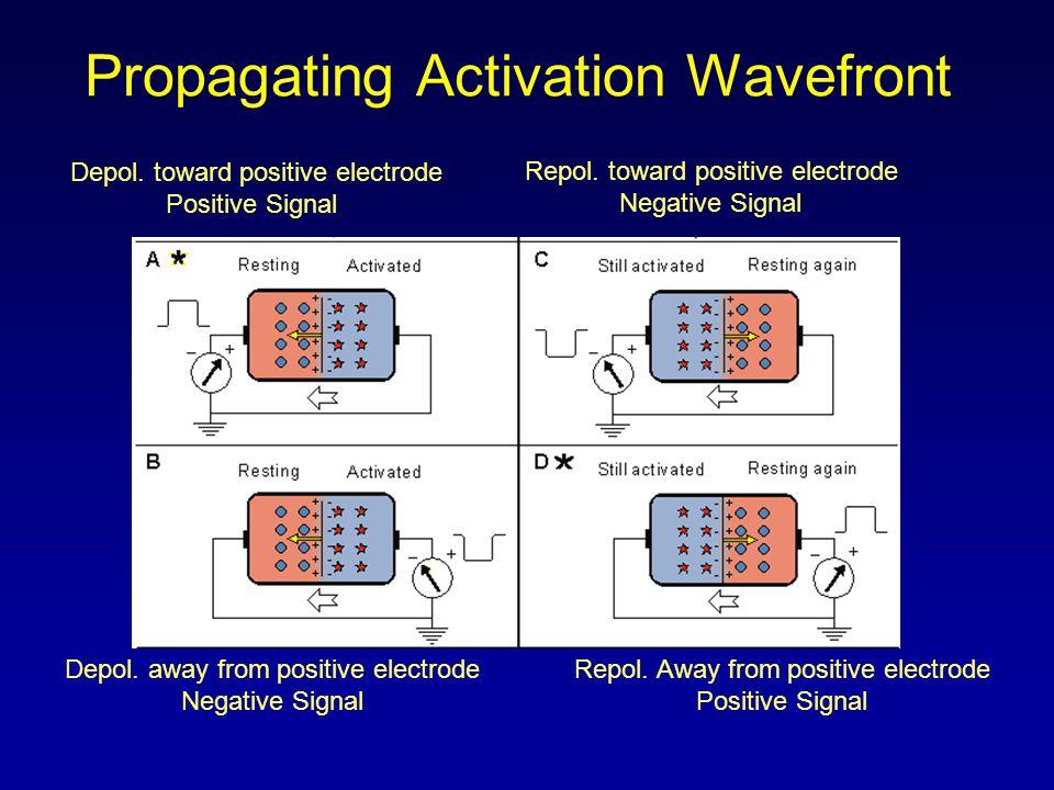 Lead Orientation Anterior, Posterior, Lateral, Inferior Views Anterior – V1 – V4 Left Lateral – I, avL, V5 and V6 Inferior – II, III, and avF Posterior – avR, reciprocal changes in V1