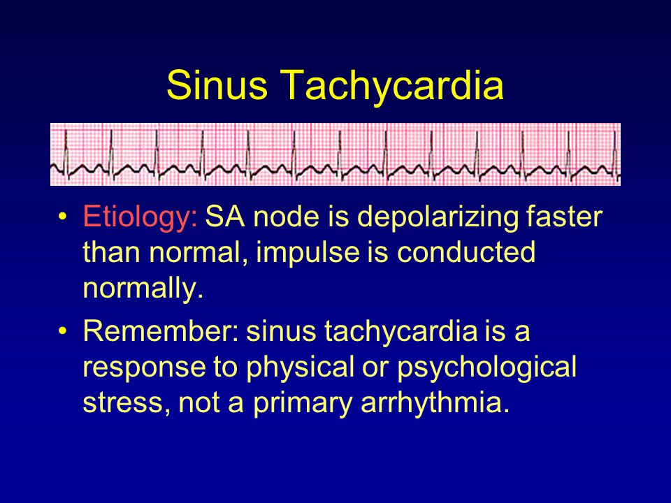 Etiology: SA node is depolarizing faster than normal, impulse is conducted normally. Remember: sinus tachycardia is a response to physical or psycholo