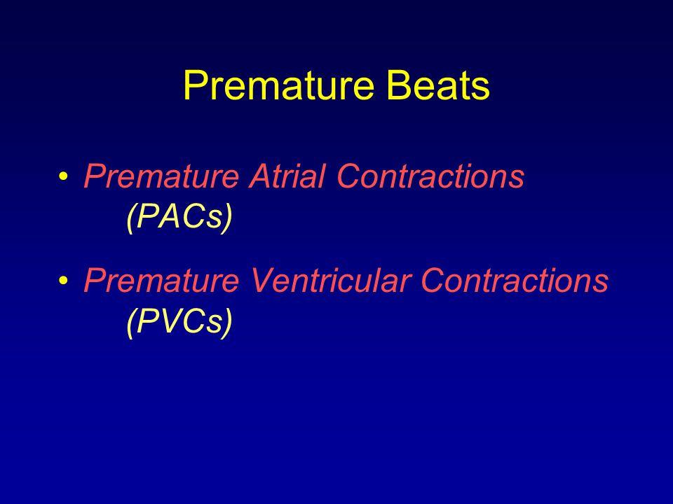 Premature Beats Premature Atrial Contractions (PACs) Premature Ventricular Contractions (PVCs)
