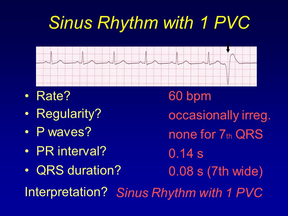 Sinus Rhythm with 1 PVC 60 bpm Rate? Regularity? occasionally irreg. none for 7 th QRS 0.08 s (7th wide) P waves? PR interval? 0.14 s QRS duration? In