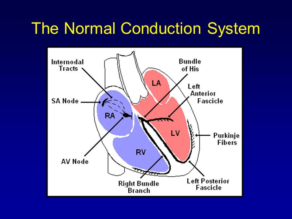 Normal Impulse Conduction Sinoatrial node AV node Bundle of His Bundle Branches Purkinje fibers