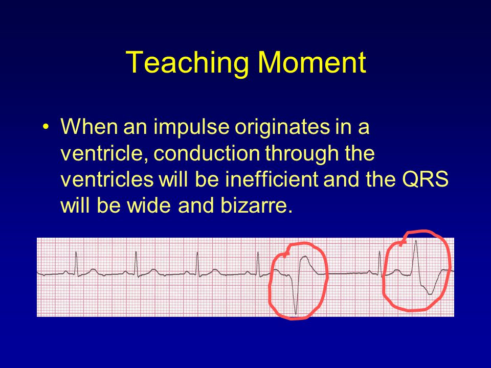 Teaching Moment When an impulse originates in a ventricle, conduction through the ventricles will be inefficient and the QRS will be wide and bizarre.
