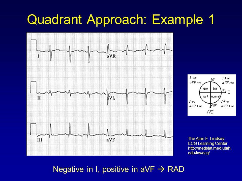 Quadrant Approach: Example 1 Negative in I, positive in aVF  RAD The Alan E. Lindsay ECG Learning Center http://medstat.med.utah. edu/kw/ecg/