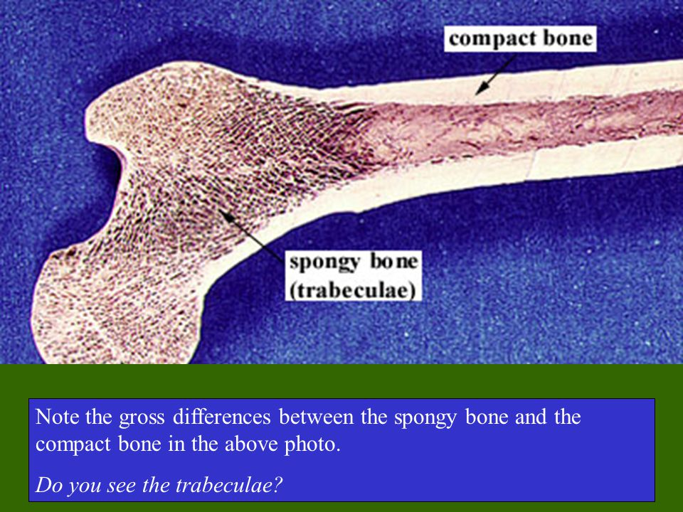 Note the gross differences between the spongy bone and the compact bone in the above photo. Do you see the trabeculae?