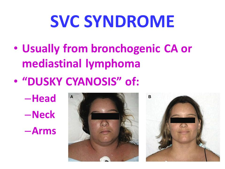 SVC SYNDROME Usually from bronchogenic CA or mediastinal lymphoma DUSKY CYANOSIS of: – Head – Neck – Arms