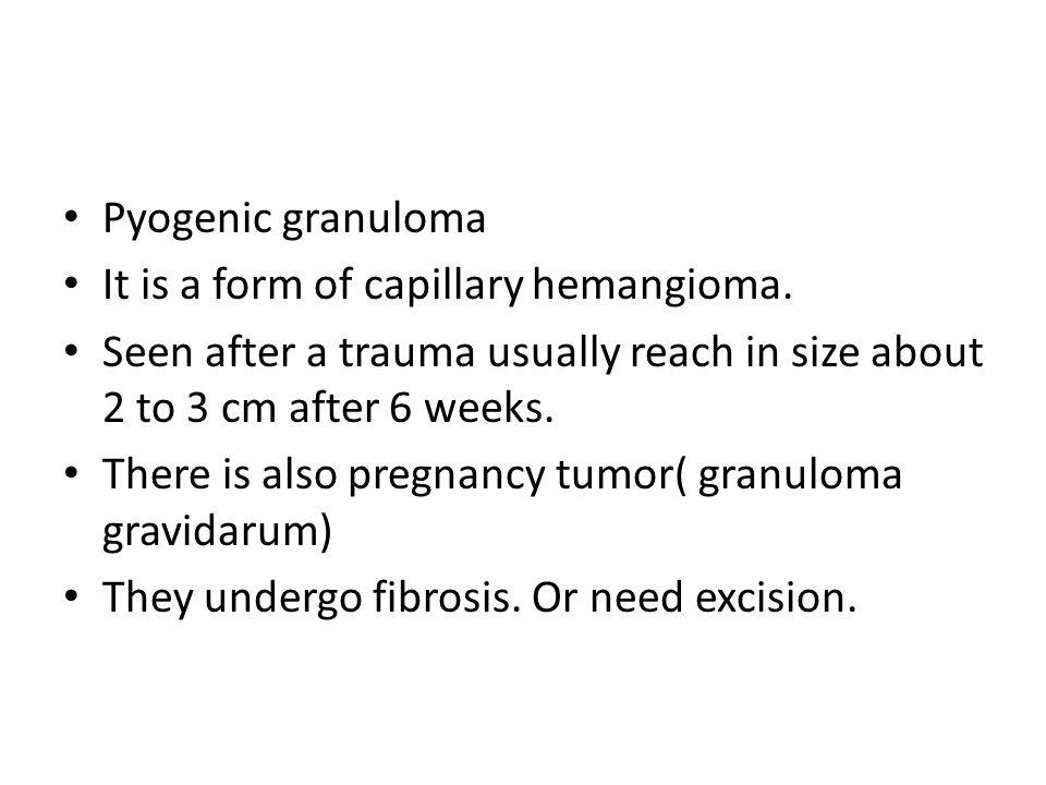 Pyogenic granuloma It is a form of capillary hemangioma.