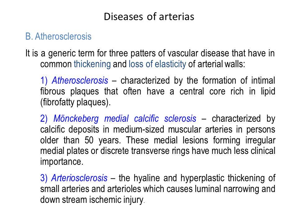 Diseases of arterias B.