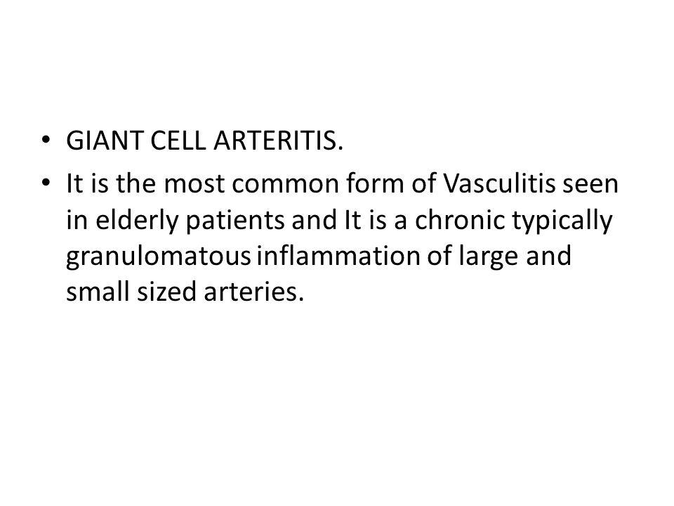GIANT CELL ARTERITIS.