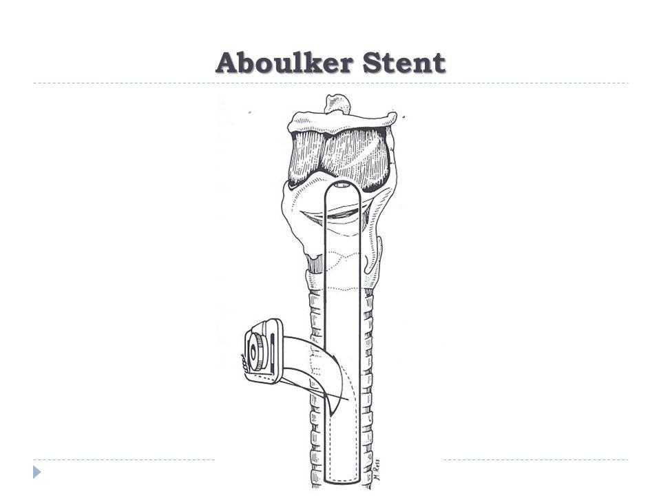 Aboulker Stent