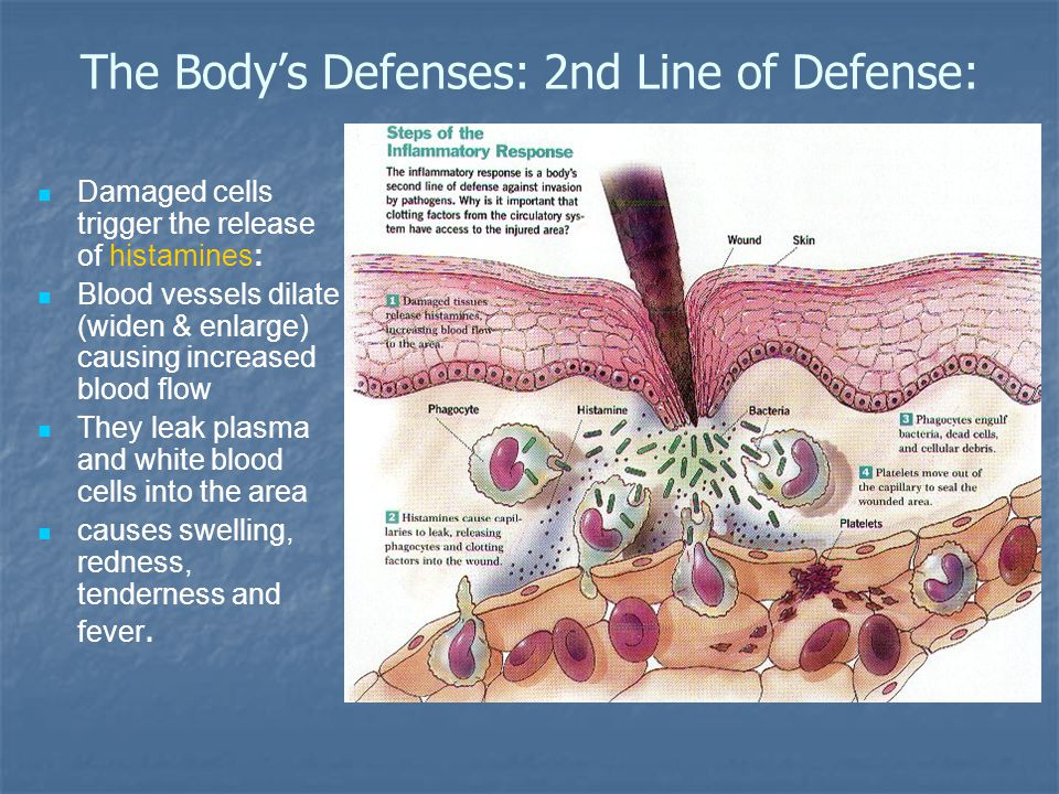 The Body's Defenses: 2nd Line of Defense: Damaged cells trigger the release of histamines: Blood vessels dilate (widen & enlarge) causing increased blood flow They leak plasma and white blood cells into the area causes swelling, redness, tenderness and fever.
