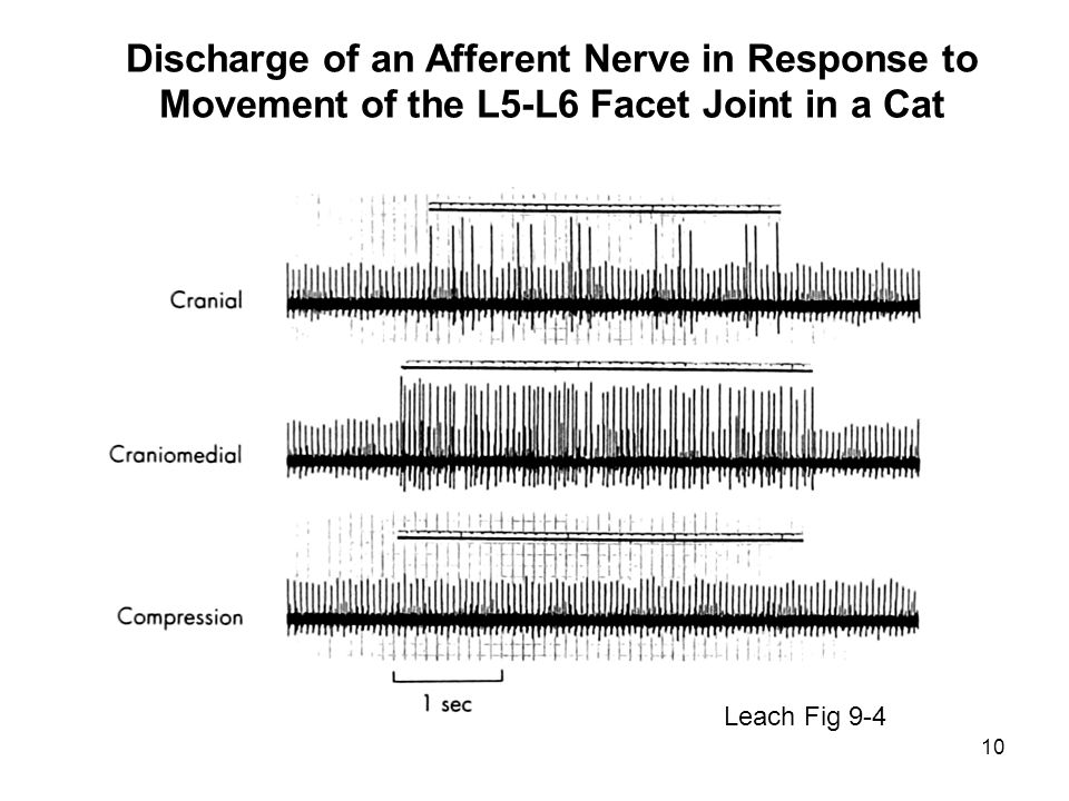 10 Leach Fig 9-4 Discharge of an Afferent Nerve in Response to Movement of the L5-L6 Facet Joint in a Cat