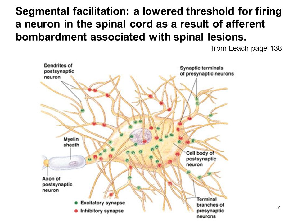 7 from Leach page 138 Segmental facilitation: a lowered threshold for firing a neuron in the spinal cord as a result of afferent bombardment associated with spinal lesions.