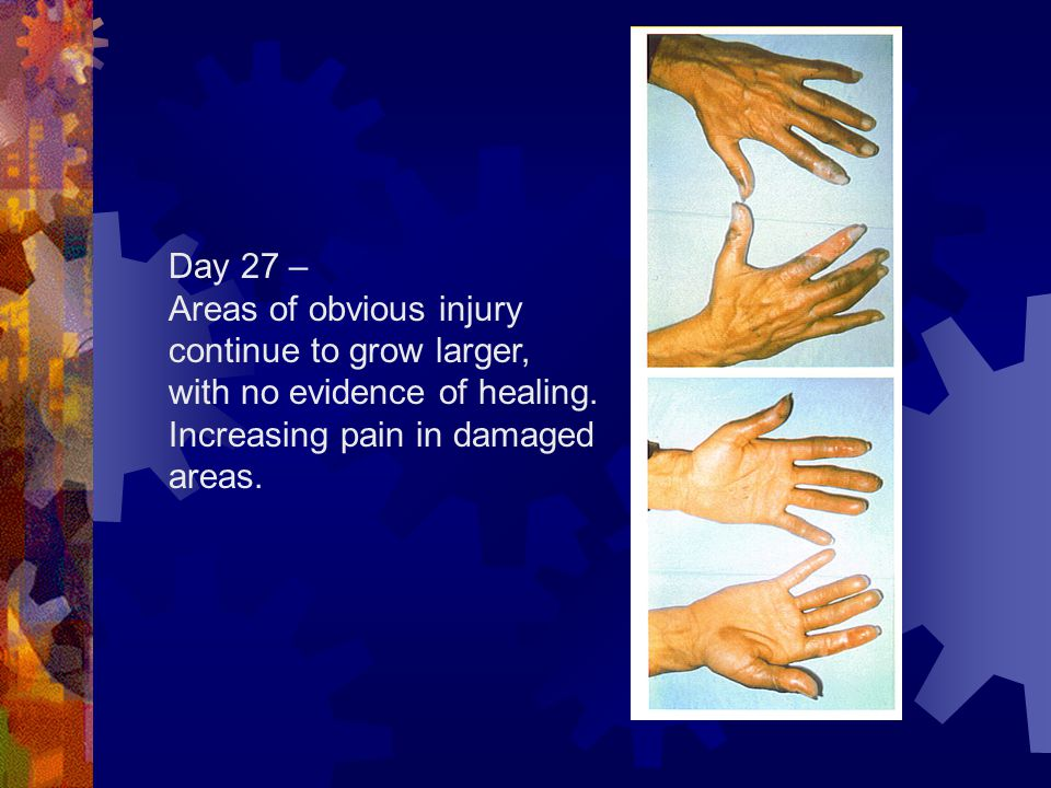 Day 27 – Areas of obvious injury continue to grow larger, with no evidence of healing.