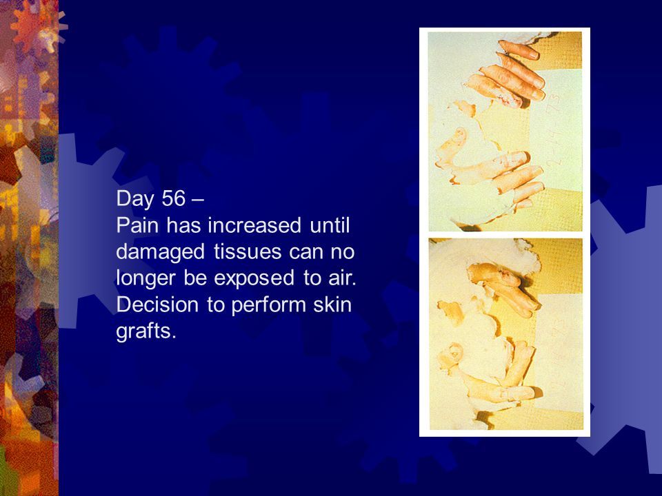 Day 56 – Pain has increased until damaged tissues can no longer be exposed to air.