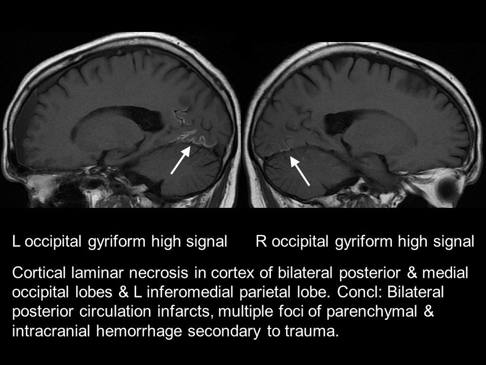 L occipital gyriform high signal R occipital gyriform high signal Cortical laminar necrosis in cortex of bilateral posterior & medial occipital lobes & L inferomedial parietal lobe.
