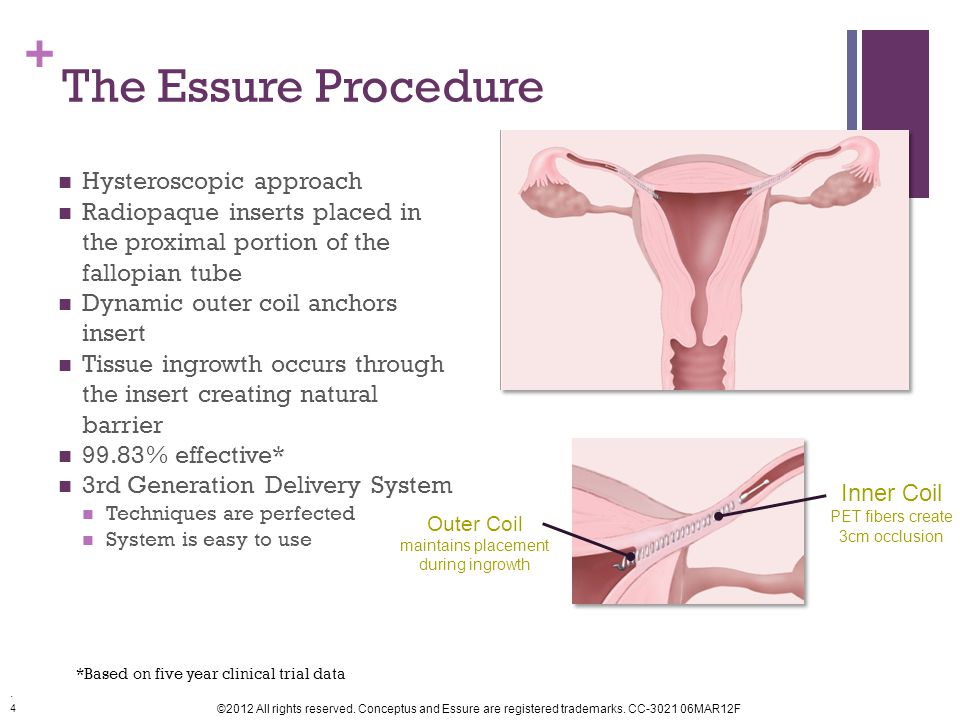 4 ©2012 All rights reserved.Conceptus and Essure are registered trademarks.