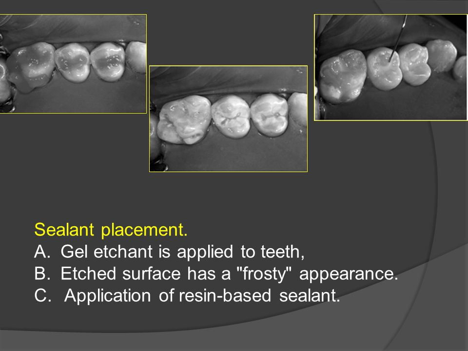 Sealant placement. A.Gel etchant is applied to teeth, B.Etched surface has a