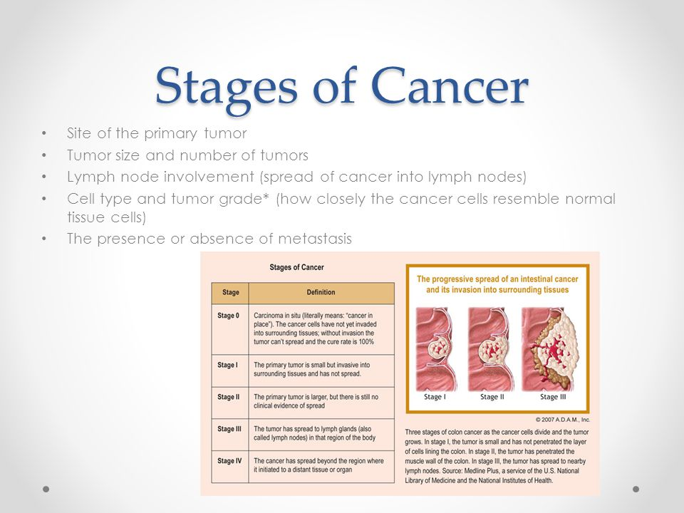 Stages of Cancer Site of the primary tumor Tumor size and number of tumors Lymph node involvement (spread of cancer into lymph nodes) Cell type and tu