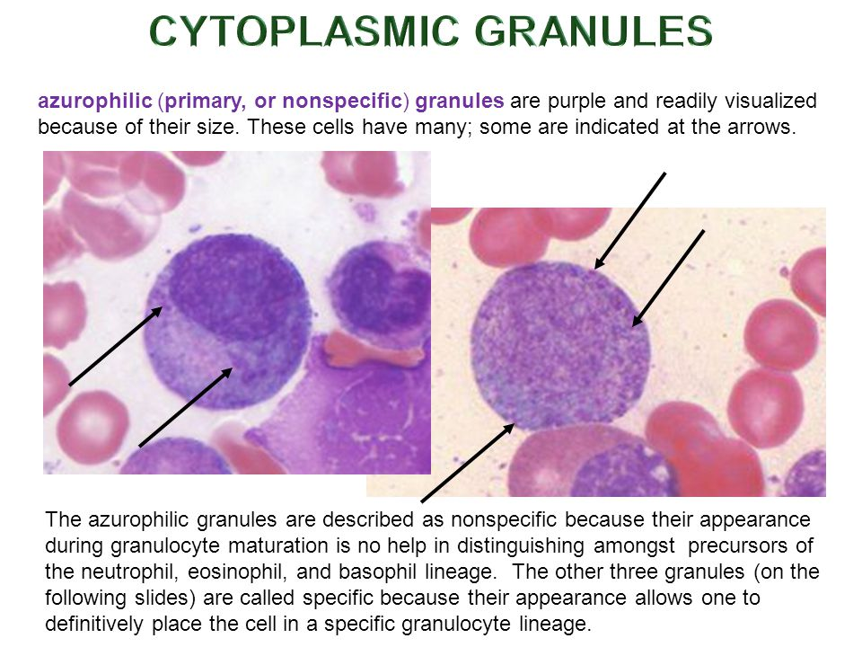 azurophilic (primary, or nonspecific) granules are purple and readily visualized because of their size.