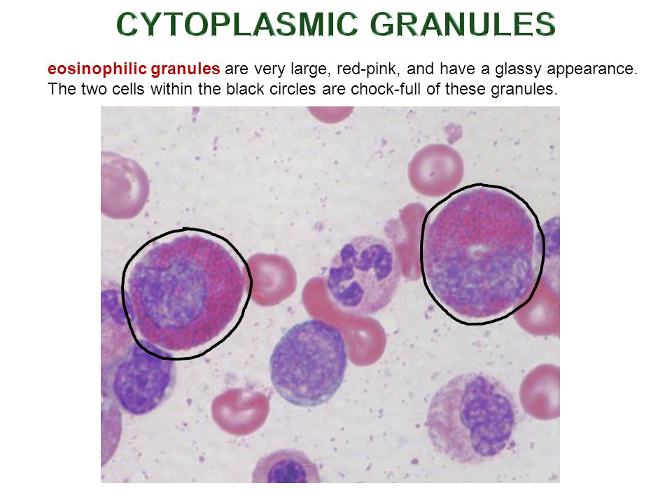 eosinophilic granules are very large, red-pink, and have a glassy appearance.