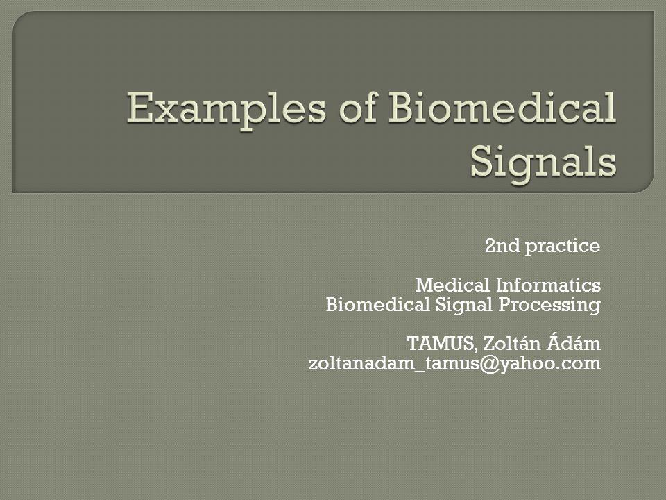 2nd practice Medical Informatics Biomedical Signal Processing TAMUS, Zoltán Ádám zoltanadam_tamus@yahoo.com