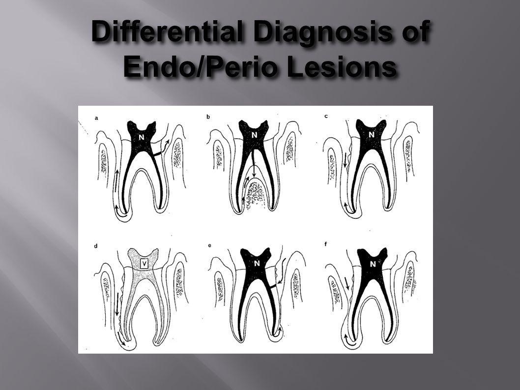 Differential Diagnosis of Endo/Perio Lesions