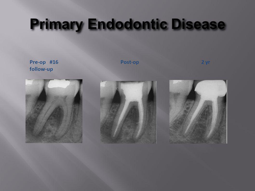 Primary Endodontic Disease Pre-op #16 Post-op 2 yr follow-up