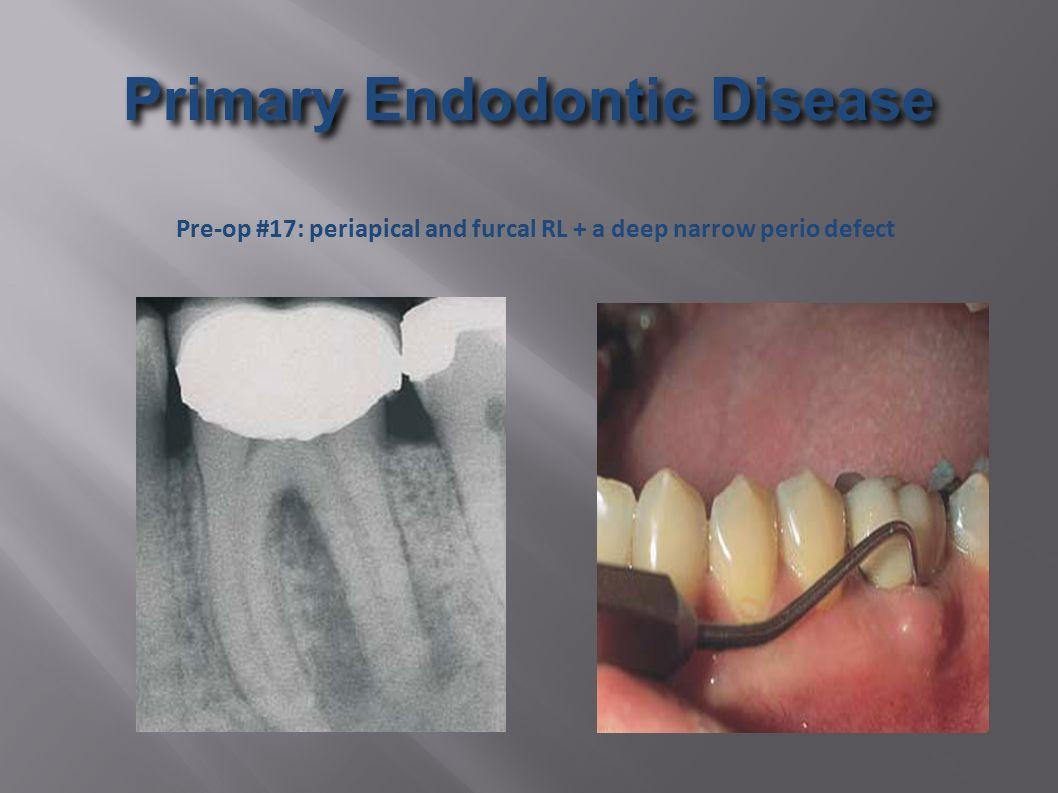 Primary Endodontic Disease Pre-op #17: periapical and furcal RL + a deep narrow perio defect