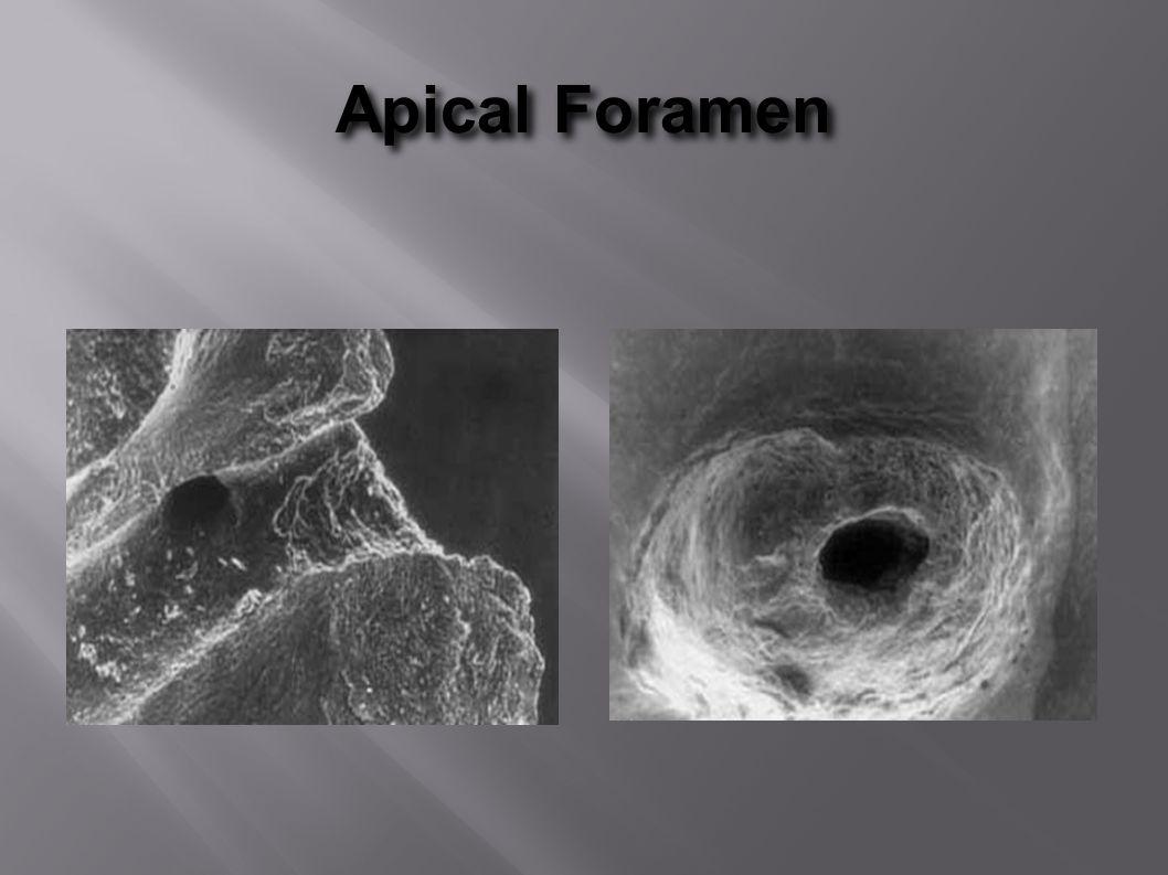 Apical Foramen