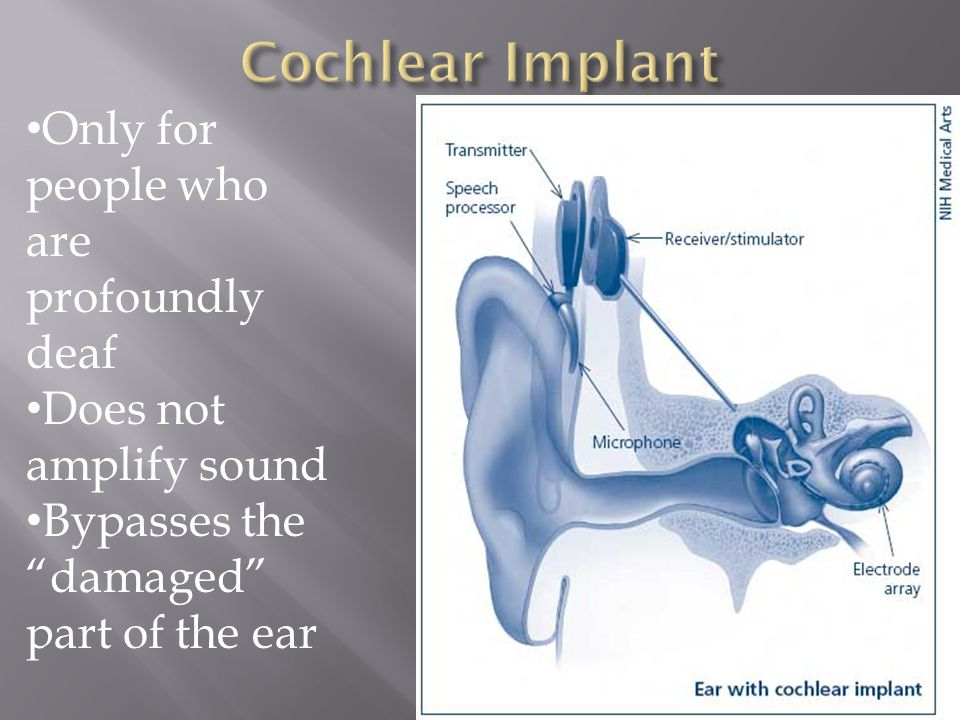  The device is a mechanical prosthesis of sorts for the inner ear.