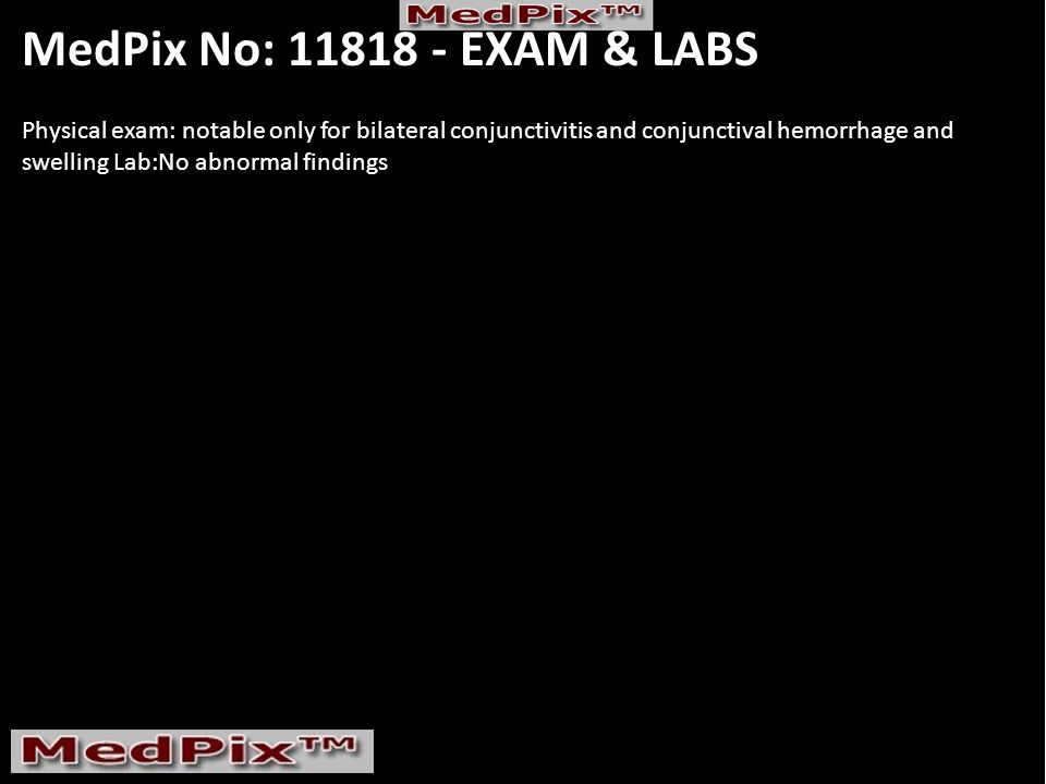 Multiple Myeloma Bilateral Lacrimal gland enlargement Downloaded by (-1)