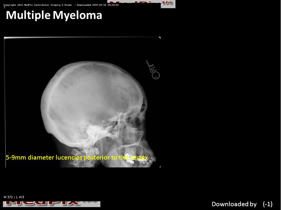 Multiple Myeloma 5-9mm diameter lucencies posterior to the vertex Downloaded by (-1)