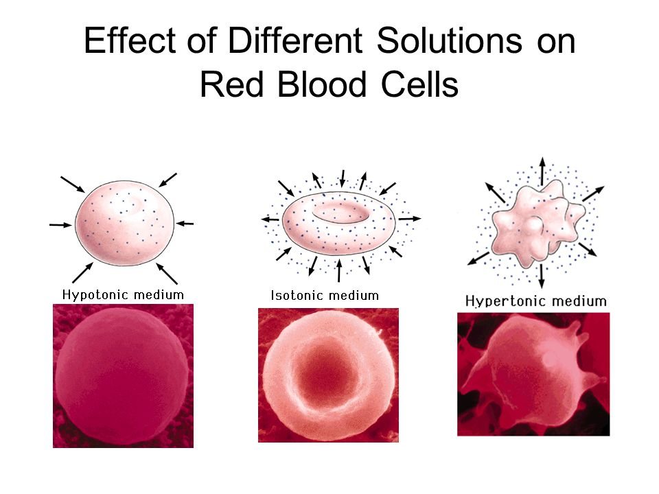 Effect of Different Solutions on Red Blood Cells