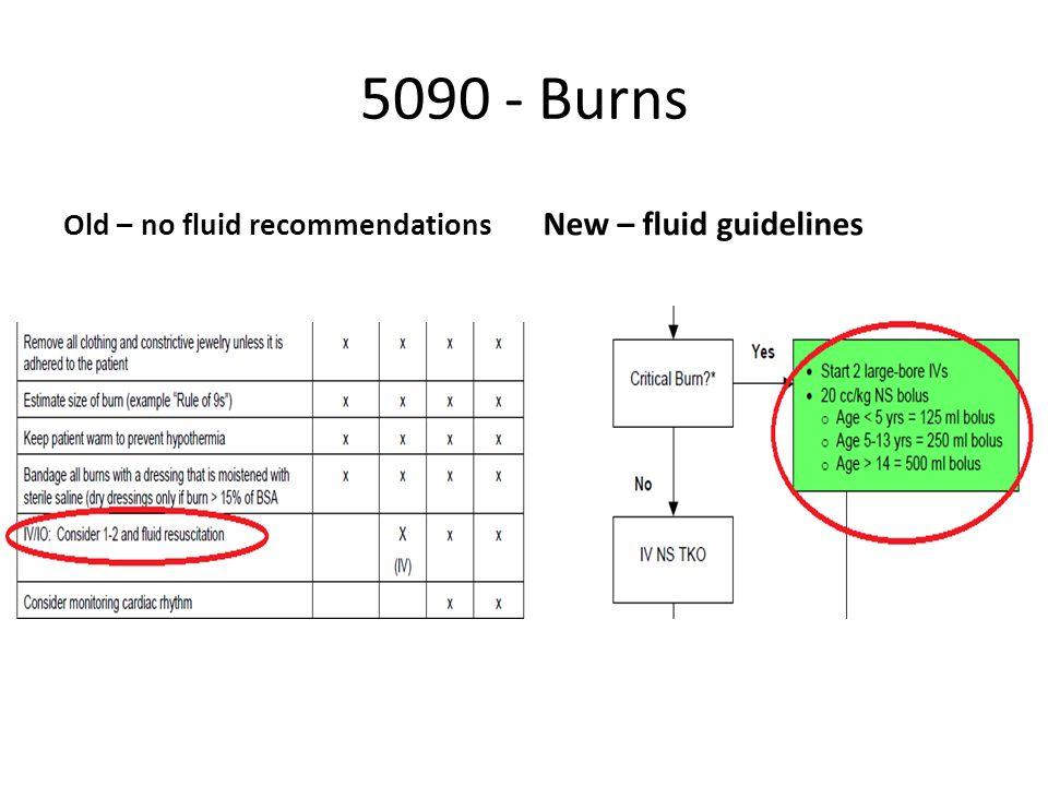 5090 - Burns Old – no fluid recommendations New – fluid guidelines