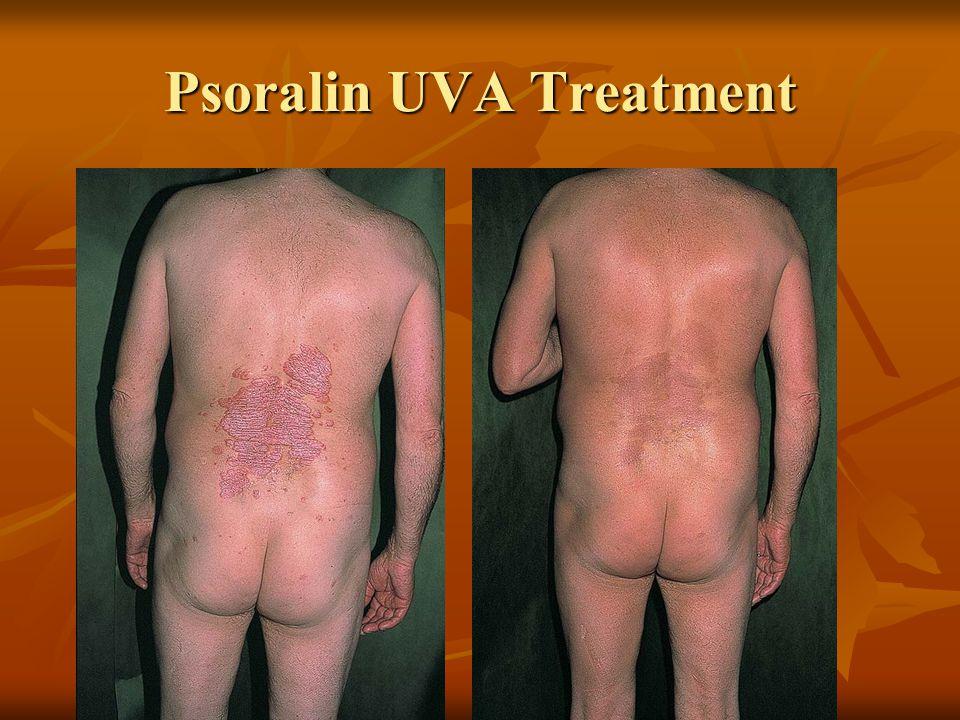 Principles of Treatment PUVA PUVA Psoralens and UVA radiation in combination Psoralens and UVA radiation in combination Methotrexate Methotrexate Cycl