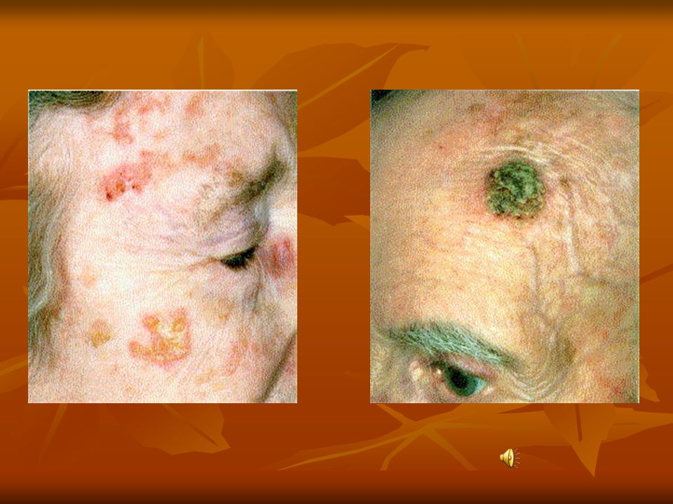……actinic keratosis Basal cell and other skin cancers can develop in these transitional type lesions.