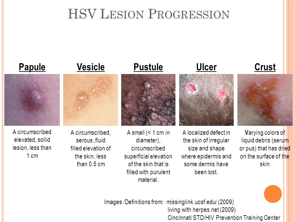 HSV L ESION P ROGRESSION Images /Definitions from: missinglink.ucsf.edu/ (2009) living with herpes.net (2009) Cincinnati STD/HIV Prevention Training C