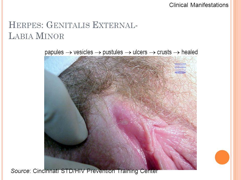 H ERPES : G ENITALIS E XTERNAL - L ABIA M INOR Source: Cincinnati STD/HIV Prevention Training Center Clinical Manifestations papules  vesicles  pust