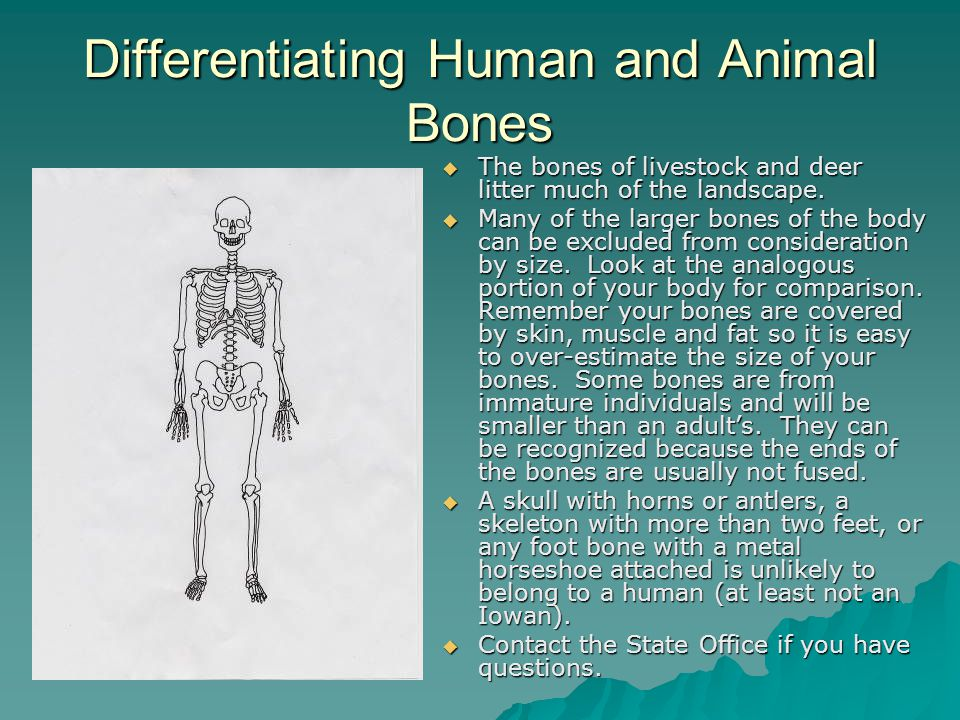 Differentiating Human and Animal Bones  The bones of livestock and deer litter much of the landscape.