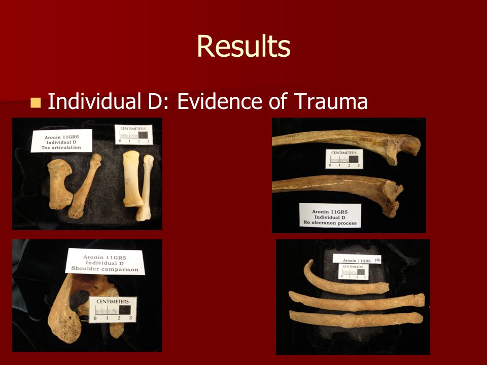 Results Individual D: Evidence of Trauma