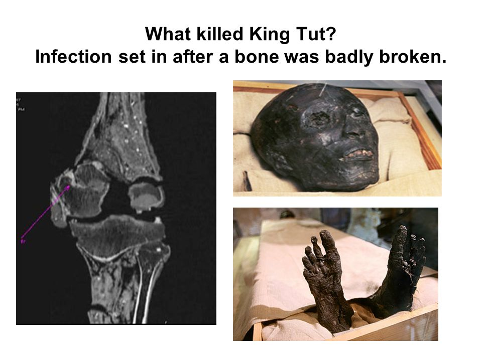 What killed King Tut? Infection set in after a bone was badly broken.