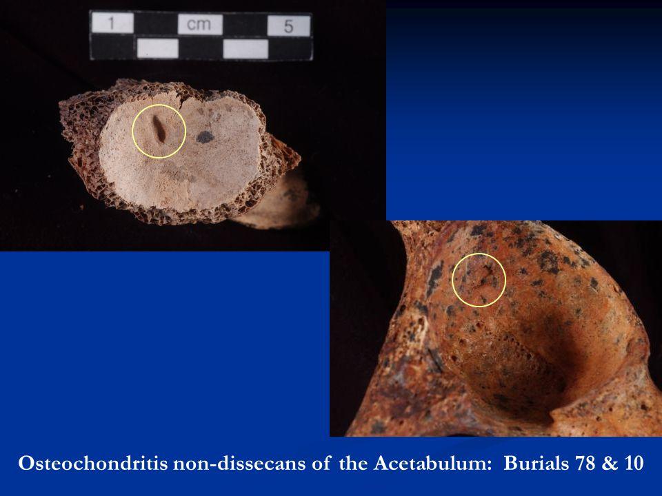Osteochondritis non-dissecans of the Acetabulum: Burials 78 & 10