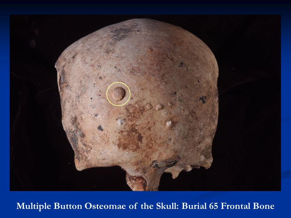 Multiple Button Osteomae of the Skull: Burial 65 Frontal Bone