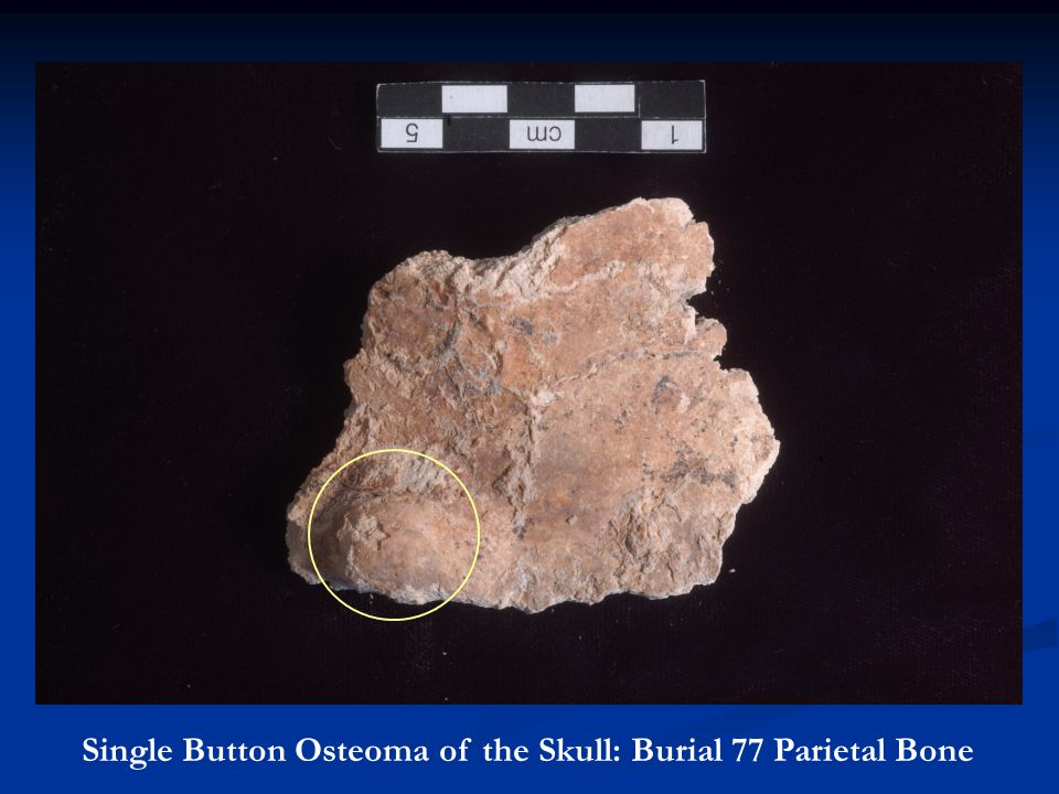 Single Button Osteoma of the Skull: Burial 77 Parietal Bone