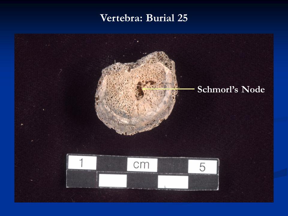 Schmorl's Node Vertebra: Burial 25
