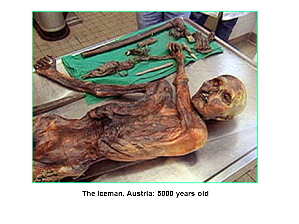 The Iceman, Austria: 5000 years old