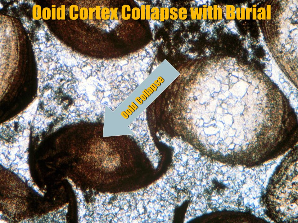 GEOL 751 Lecture 6: Cementation & Diagnesis Ooid Cortex Collapse with Burial Ooid Collapse
