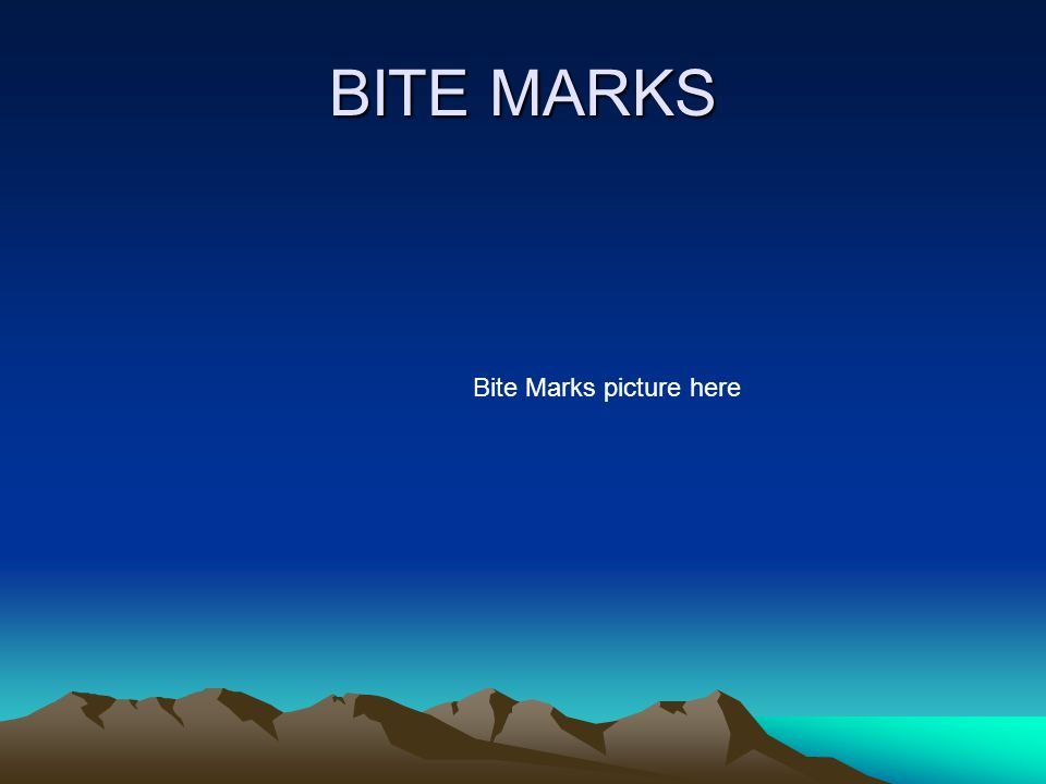 BITE MARKS Bite Marks picture here