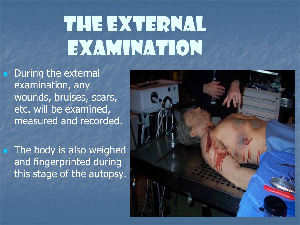 The External Examination During the external examination, any wounds, bruises, scars, etc. will be examined, measured and recorded. The body is also w