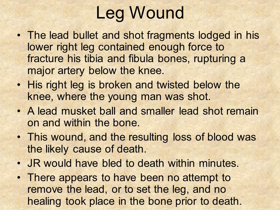 Leg Wound The lead bullet and shot fragments lodged in his lower right leg contained enough force to fracture his tibia and fibula bones, rupturing a major artery below the knee.